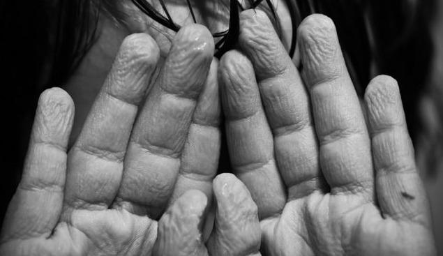 Pelle delle mani con grinze